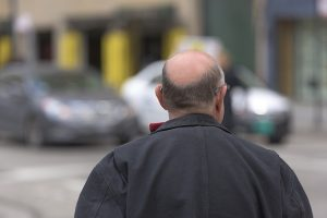 A balding pattern by the age of sixty