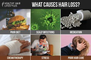 Aside from genetics, other causes of hair loss are poor diet, scalp infections, medication, chemotherapy, stress, and poor hair care.